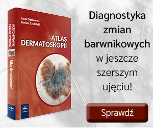 Atlas dermatoskopii